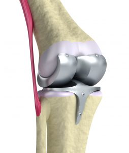 Attune Artificial Knee Replacement