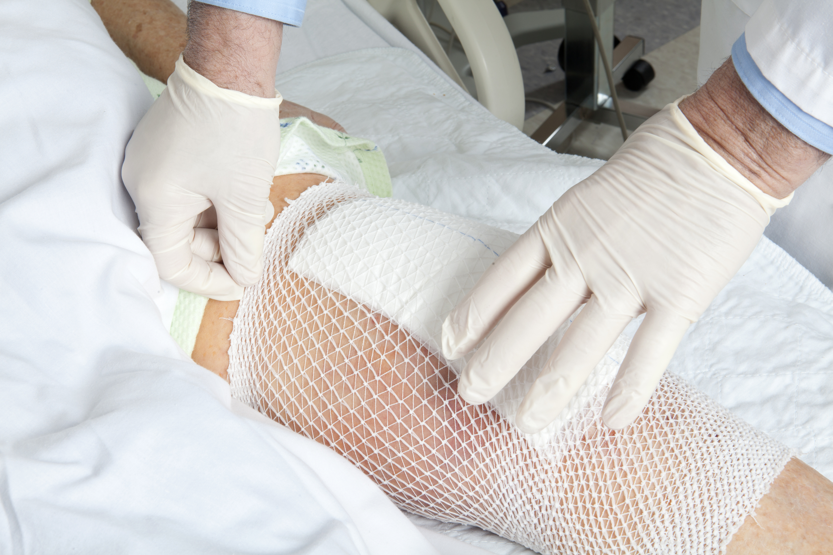 Zimmer NexGen Knee Lawsuits: Now the Good News — North