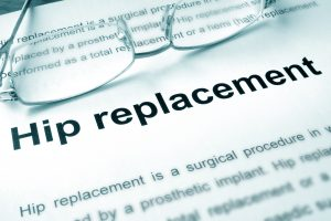 Artificial hip replacement and hip resurfacing