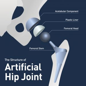 Artificial Hip Joint Showing femoral head and femoral neck and stem