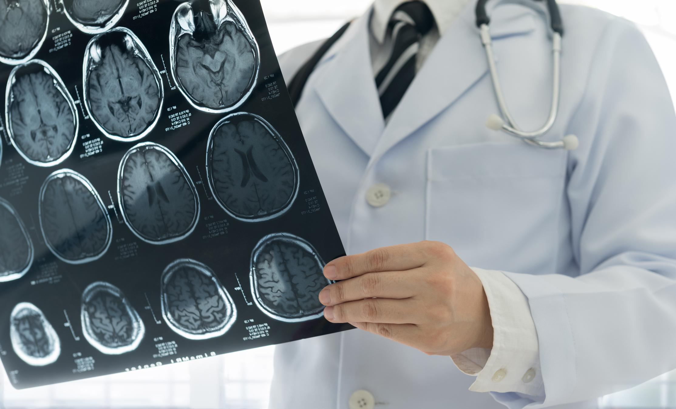 MRI Gadolinium-Based Contrast Agents (GBCA) Can Harm Your Health